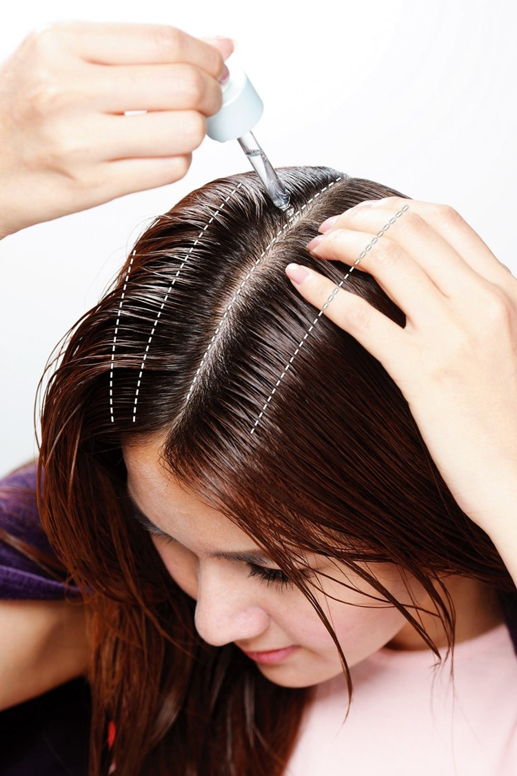 STEP1:滴管尖頭,將頭髮分線後,尖嘴或滴管直接在頭皮塗上精華液。整頭分成四條...