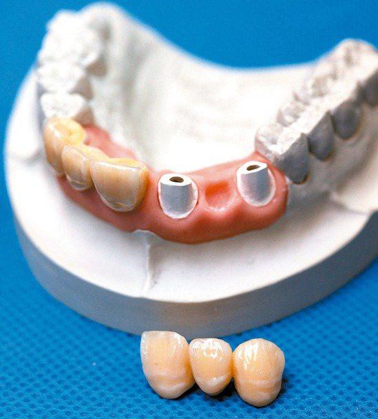 植牙市場價格紊亂,各地價差非常大,衛福部邀集牙醫界研商,希望訂出收費上下限。 報...