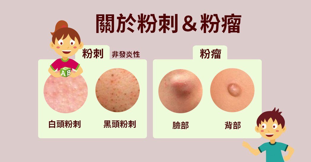 若是痘痘已讓皮膚痛得受不了,建議先熱敷,讓痘痘或粉瘤自爆。 製圖/黃琬淑