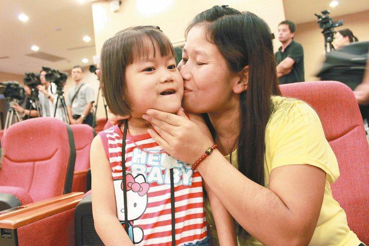 緬甸華裔女童濮雙婷(左)原來因血管瘤造成舌頭突出,手術成功後,媽媽開心親吻她。 ...