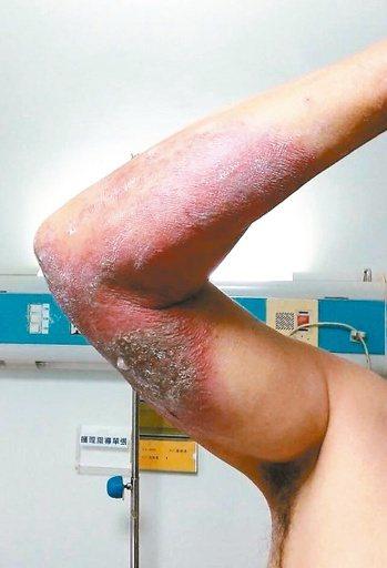 農夫在田裡遇上隱翅蟲,不慎拍打後造成大面積紅腫破皮。 記者凌筠婷/翻攝