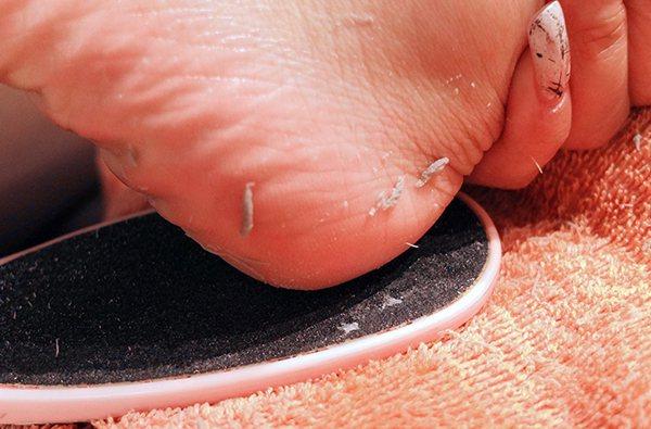 磨腳皮就像刨蘿蔔絲,要磨出一條一條的皮才是標準;若磨出來都是碎屑,則是錯誤方式。...
