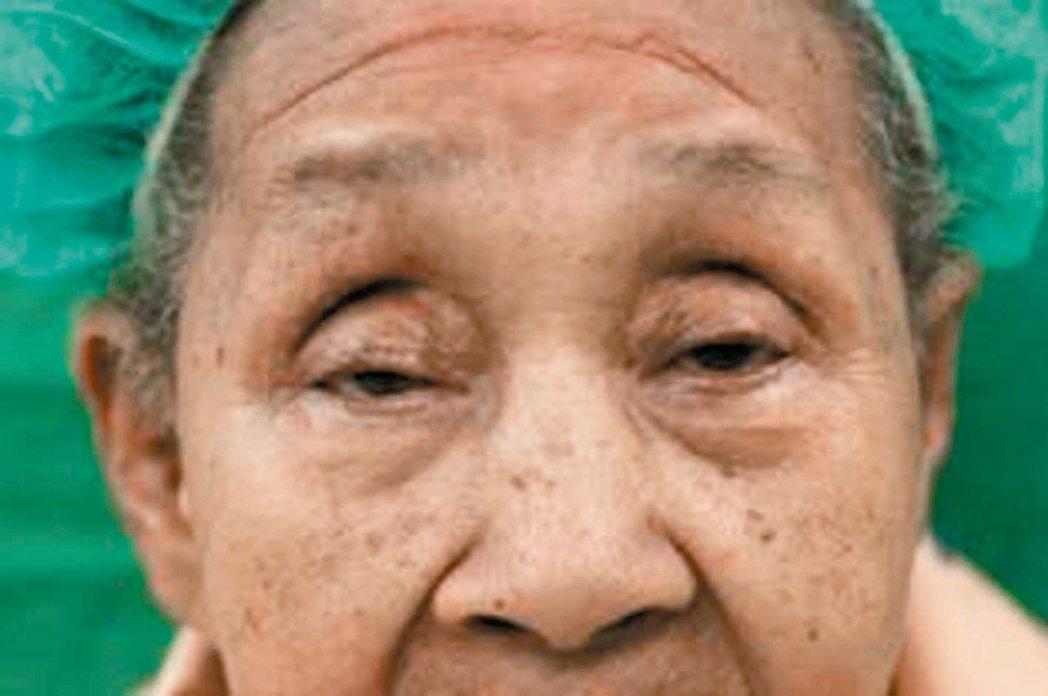 78歲曾張女士因退化性眼瞼下垂,眼睛一度只能張開3至4毫米。 記者蔡容喬/攝影