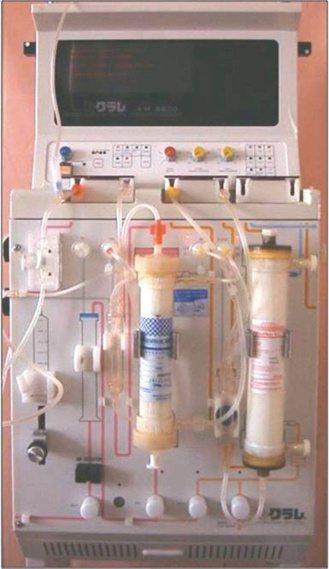 新光醫院治療重症肌無力、周產期心肌病變等病人,透過血漿分離技術,達到洗血治療效果...