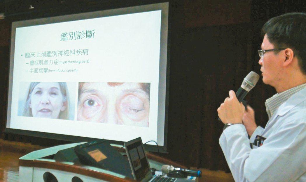 高醫神經內科主治醫師張揚沛表示,眼瞼痙攣是因眼輪匝肌反覆、不自主的收縮,導致眼瞼...