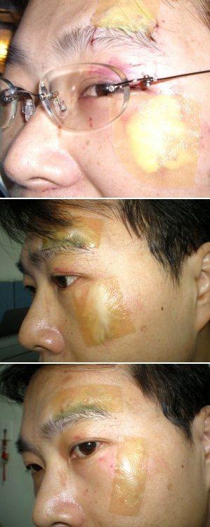 傷口恢復的第三、七、九天。 圖/呂建和提供