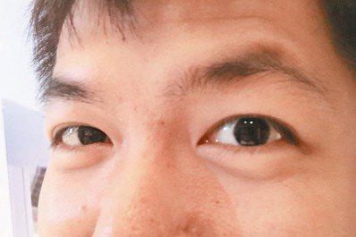 淚溝令人老,皮膚科醫師指出,淚溝在眼袋下方,容易出現黑眼圈,看起來疲憊、老態。 ...
