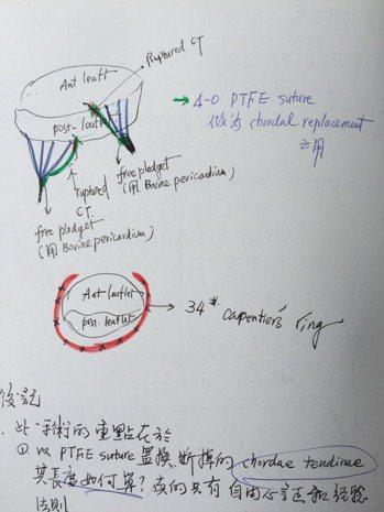 二尖瓣膜修補手術圖示 圖/蘇上豪提供
