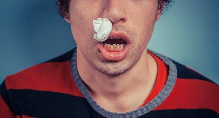 流鼻血示意圖。 圖/ingimage