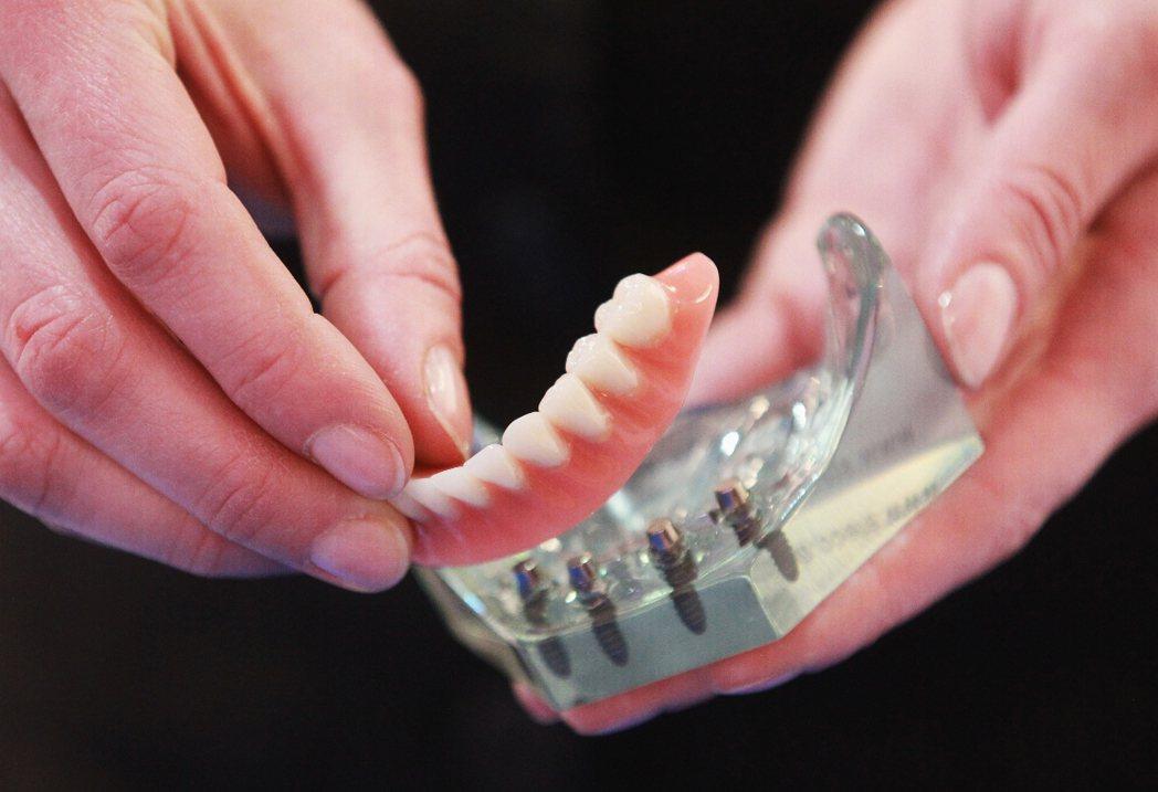 儘管花費大,想植牙者越來越多。 Getty Images