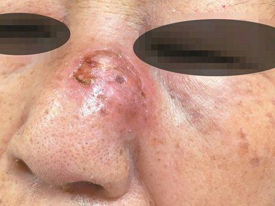 一名婦人因鼻子紅腫擴散到眼眶周圍,到新竹國泰綜合醫院就診,診斷為罹患鼻腔型淋巴腺...
