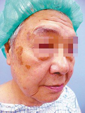 近年來阿公阿阿嬤接受整形手術者愈來愈多,圖為一名年近八十的老人因有明顯的抬頭紋及...