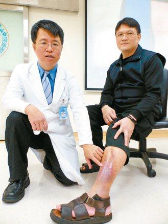 醫師林子鈞(左)說明,劉姓印刷工人因久站靜脈曲張,造成左小腿傷口潰瘍難癒合。 記...