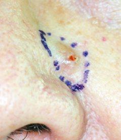 60歲男子10多年前鼻翼旁有凸起物,最近泛紅流血,檢查竟是皮膚癌。 圖/書田診所...