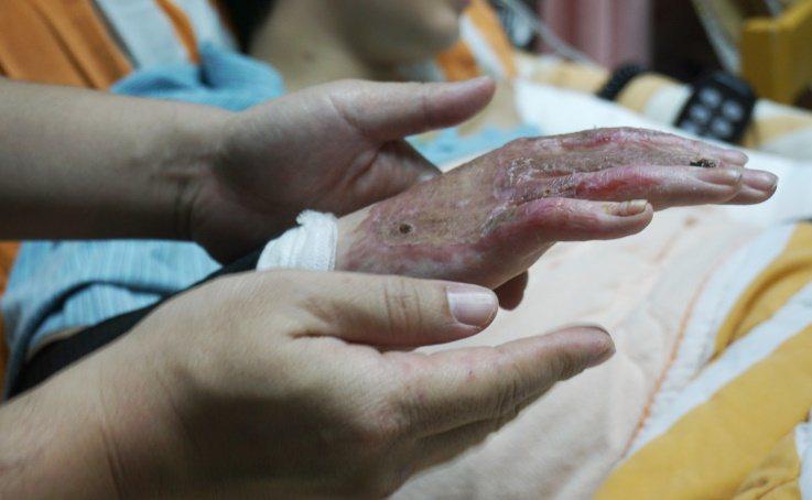 哥哥替伃均的手抹上乳液。 攝影/江佩津