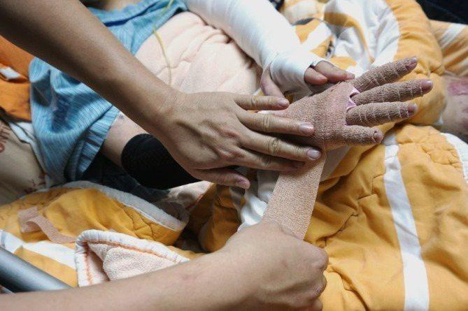 纏手指的繃帶。 江佩津/攝影