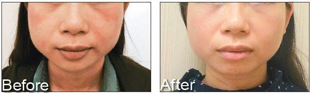 脂漏性皮膚炎造成皮膚泛紅、脫皮(圖左),需配合身體臟腑的全盤調理,才有機會根治(...