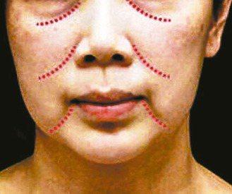三八線指的是淚溝、法令紋與嘴角旁的木偶紋(由上而下),一旦浮現明顯,人會顯得老態...