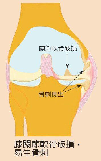 膝關節軟骨破損,易生骨刺