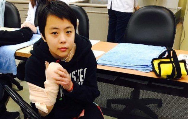 復健中的伃均,右手用繃帶纏成握拳貌。/ 伃均媽媽提供