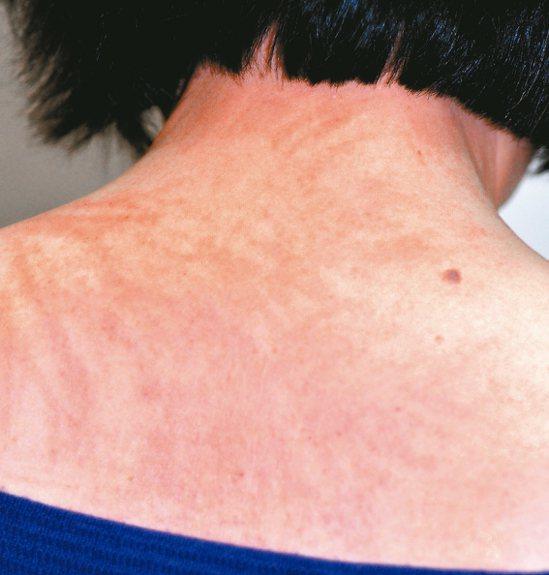 上背部的鞭打狀皮膚炎,外觀狀似被鞭打後的長條狀皮疹,圖非當事人。 圖/彭賢禮皮膚...