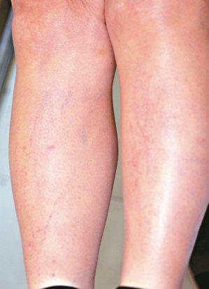 四肢也有許多鞭打狀的皮疹。 圖/彭賢禮皮膚科診所提供