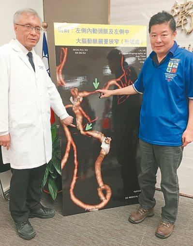 衛福部嘉義醫院院長陳啟仁(左)替顱內動脈狹窄的徐警官進行支架置放手術,如今恢復良...