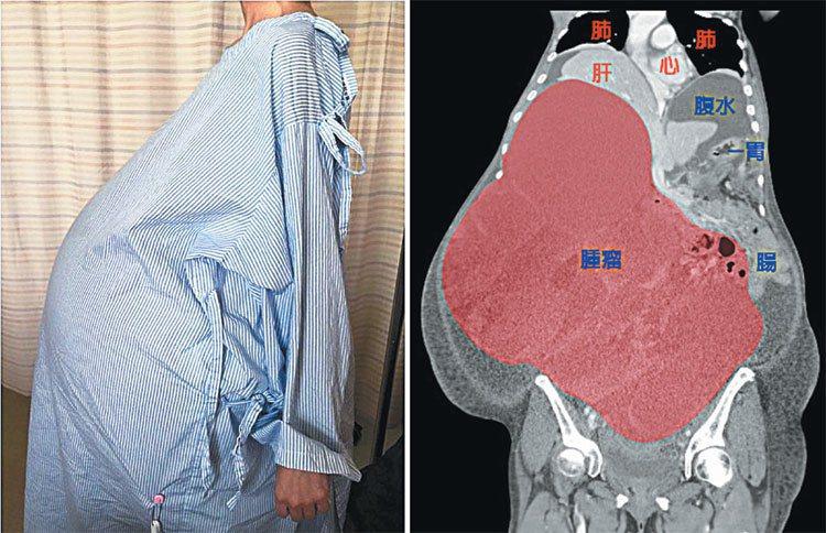 劉女士腫瘤不斷增大,已壓迫到周邊器官(右圖,北醫提供)。 記者黃威彬/攝影