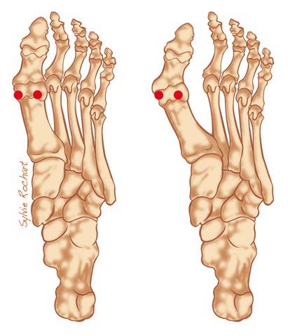 左圖為正常腳,右圖為拇趾外翻。大拇趾最靠外側的紅點為拇趾外翻疼痛點。