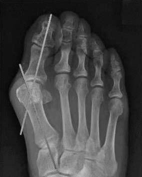 圖① 腳趾第一趾彎曲35度的中等症狀的拇趾外翻X光片