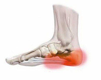 足底筋膜炎的疼痛部位:圖中深紅為病灶,淺紅為因病灶引起之牽痛。 圖/李文吉提供