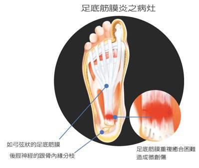 足底筋膜炎之病灶 圖/李文吉提供