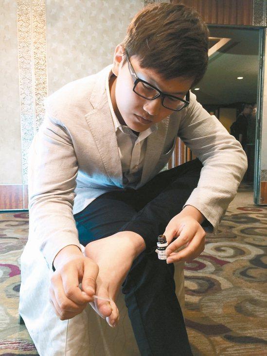 多數人忽略灰指甲的嚴重性,不僅容易傳染給他人,也可能影響兩性關係。 記者陳雨鑫/...