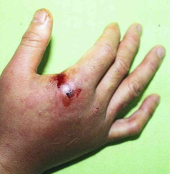男子遭家中飼養的淡水魟魚刺傷,右手背潰爛。 圖/蔡維禎提供