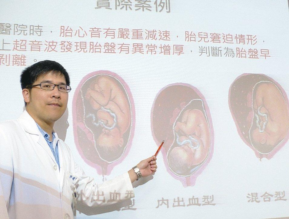 婦產科醫許峻睿說明,許姓產婦屬於內出血型胎盤早期剝離。 記者趙容萱/攝影