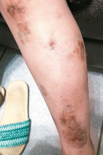 衛生福利部立南投醫院皮膚科主治醫師李瑜芬發現,入夏後很多人因流汗過多未做好清潔處...