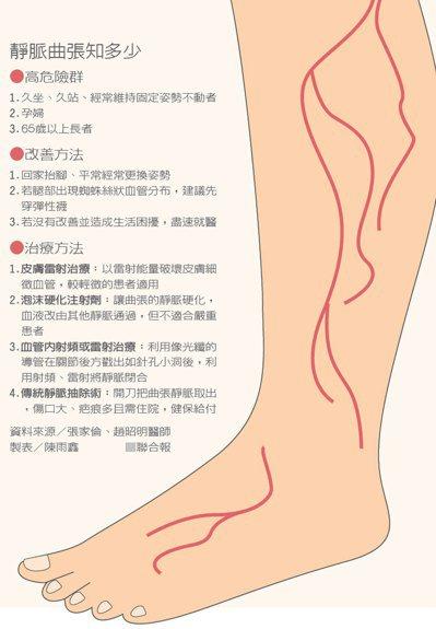 靜脈曲張是現代人經常發生的腿部疾病,花蓮慈濟醫院針對小腿部位「靜脈曲張超級微創內...