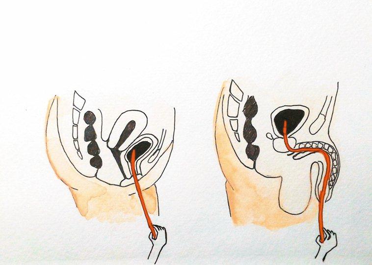 間歇性導尿示意圖:導尿管經由尿道置入膀胱,將尿液引流,由病人或家屬執行,每日數次...