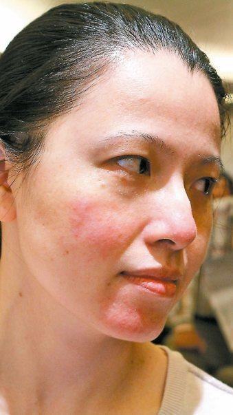 酒糟性臉部紅斑常見臉部發紅,臉部血管不明原因擴張,特別是鼻頭。 記者陳雨鑫/攝影