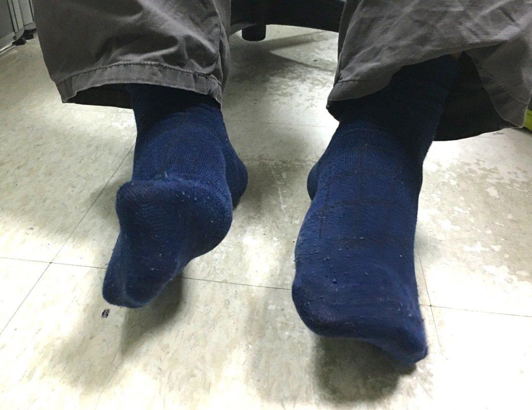 香港腳不一定又痛又癢,若延誤治療可能引起股癬、灰指甲等,有症狀應儘速就醫。記者江...