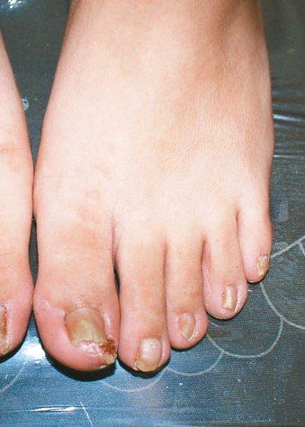 腳趾指因為灰指甲的關係有增厚變形的情況,也因為擠壓的關係,指甲往兩邊刺入周邊組織...