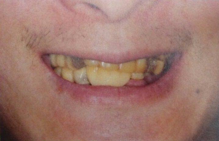 一名35歲竹科工程師自小就有牙周病,卻因沒有認真、及早處理,演變到後來只能吃軟綿...