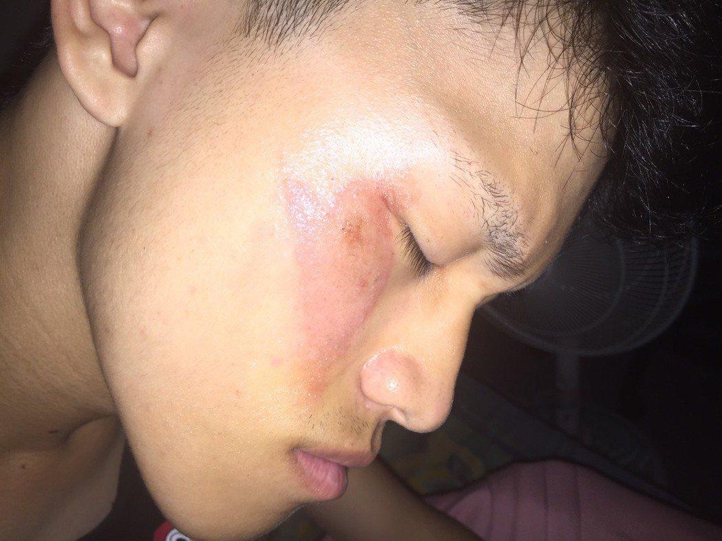原本臉蛋白皙的男大學生,因拍打附著在臉部的隱翅蟲,臉部除留下諸多小傷口、水泡,還...