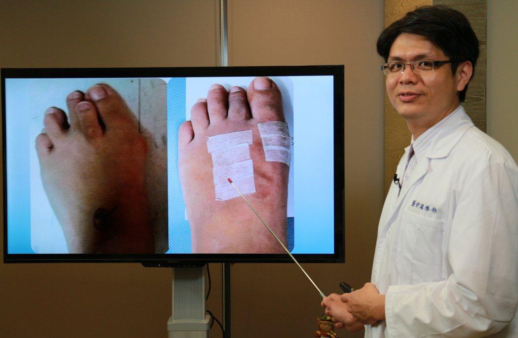拇趾外翻大拇趾跟第二趾重疊(左圖),疼痛且行走不平衡,微創矯正不再痛(右圖)。記...
