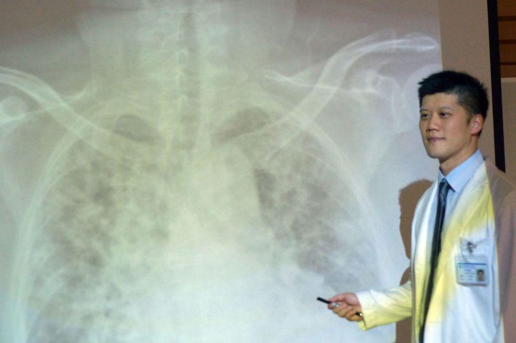 醫師林明輝說,郭姓病患使用葉克膜前,肺部浸潤情況。記者趙容萱/攝影