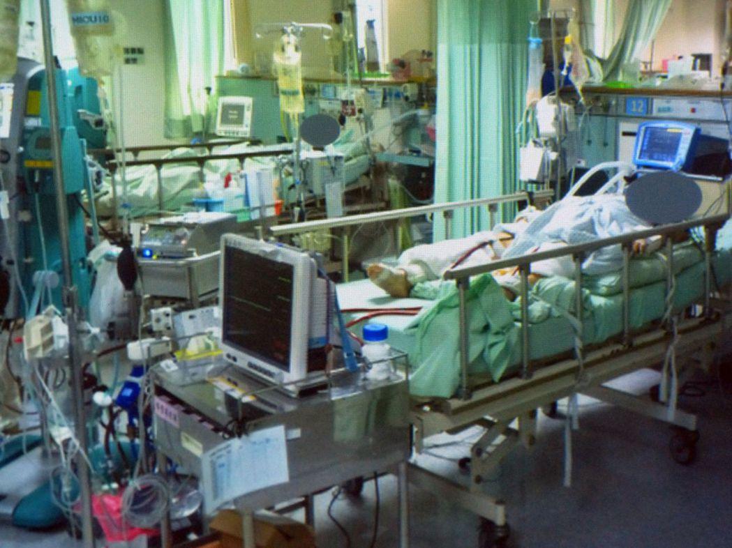 醫師林明輝說明,郭姓病患因呼吸困難,使用葉克膜治療一周。圖/林明輝提供