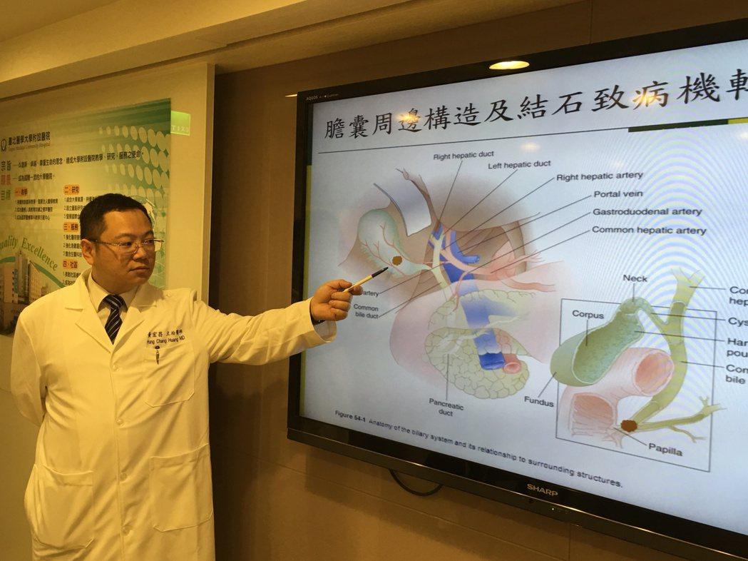 醫師黃宏昌指出,國人膽結石的比率約1至3成,短時間內攝取大量油脂,水分攝取不足,...