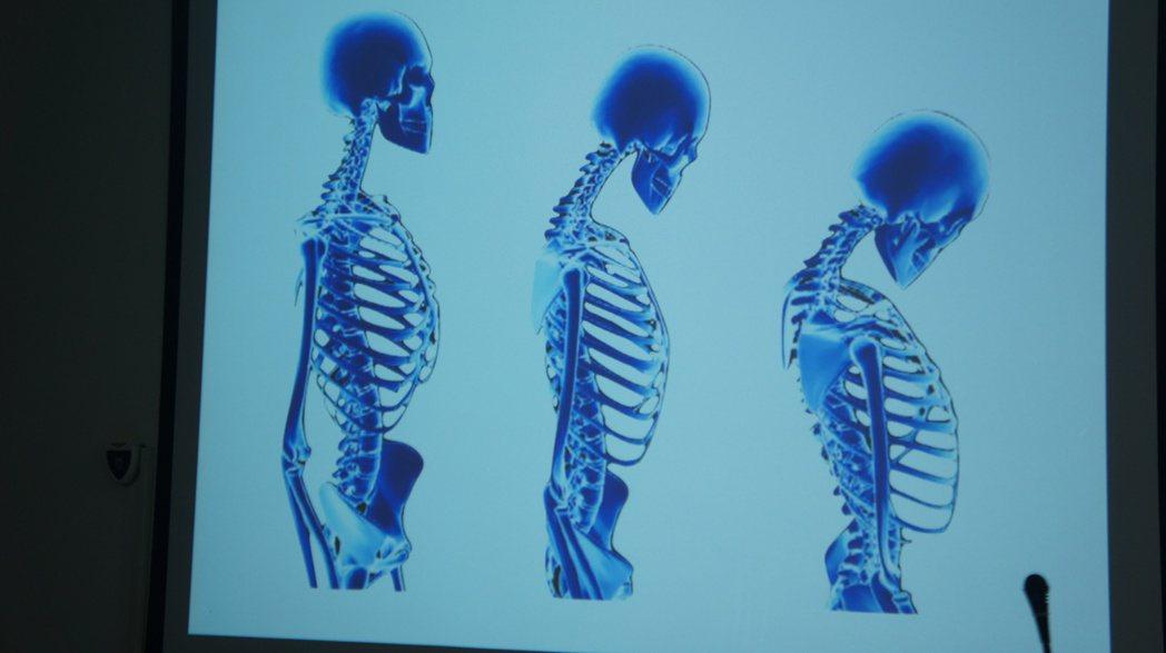 民眾若駝背情況越來越嚴重,或比年輕時矮上3公分,就可能罹患骨質疏鬆症。記者李京昇...