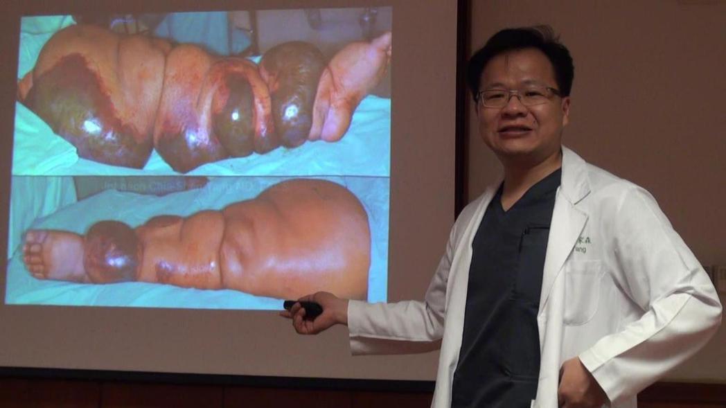 楊家森醫師表示,婦人的左腿腫如籃球,合併敗血,差點就危及性命。記者王昭月/攝影