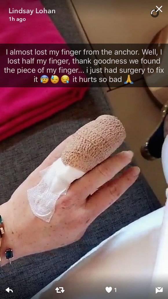 琳賽蘿涵在snapchat與IG上貼出手指包紮繃帶的短片 。圖/摘自snapch...